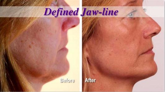 natural face lift